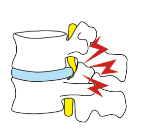 腰椎ヘルニア-こんなお悩みはありませんか?
