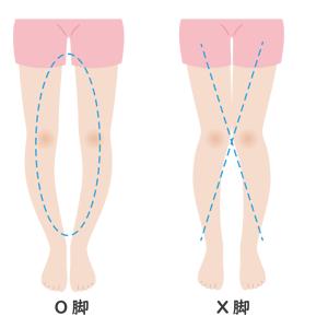 O脚矯正・X脚矯正-こんなお悩みはありませんか?